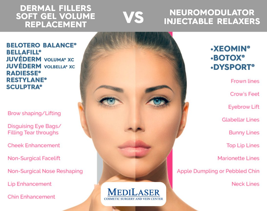 Botox & Dermal Fillers | Medilaser Surgery and Vein Center